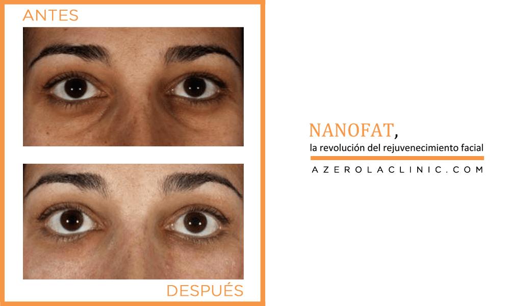 NANOFAT - Rejuvenecimiento facial