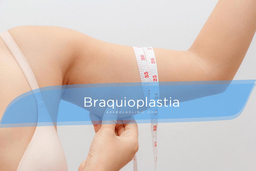 Cirugía de los brazos (braquioplastia) en Tenerife