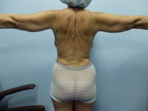 BRAQUIOPLASTIA | Cirugía de los brazos.