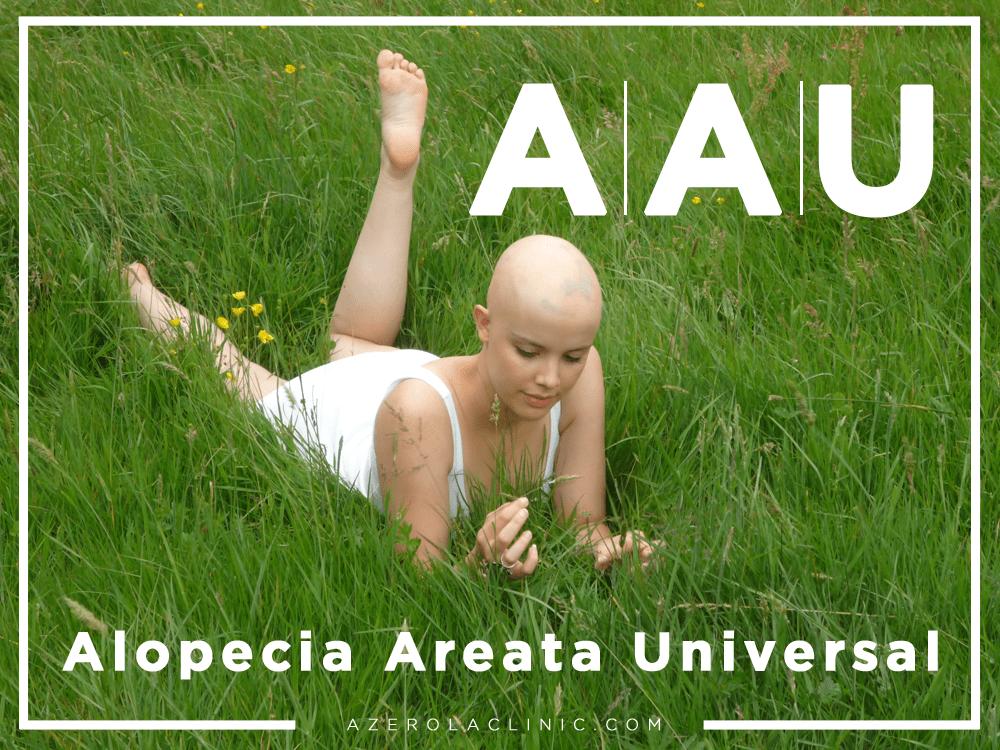 Alopecia Areata Universal | Estudios y tratamientos