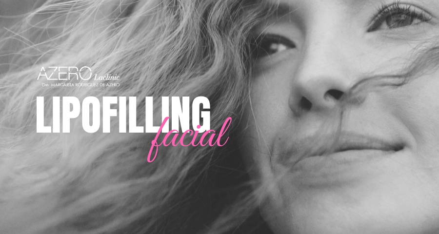 Lipofilling facial, rellenos de tu propio tejido natural en Tenerife