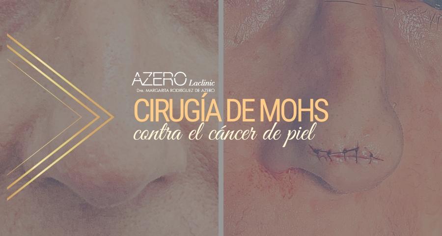 AZERO Laclinic realiza con éxito una cirugía de Mohs en Tenerife, técnica puntera para extirpar cáncer de piel.