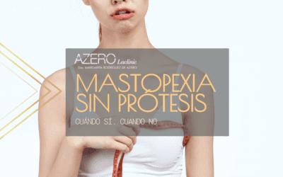 Mastopexia sin prótesis. Cuándo sí, cuándo no.